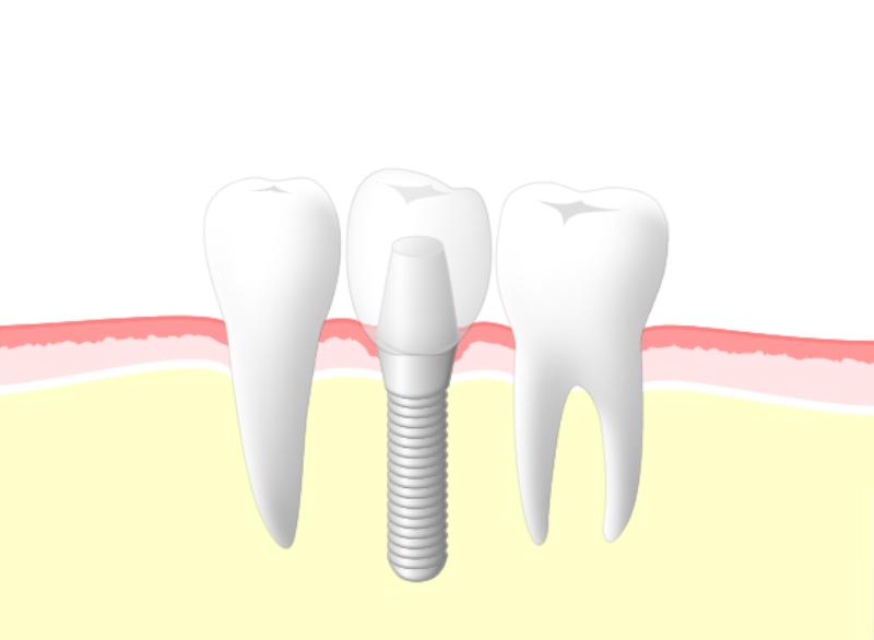 インプラント治療に必要なこと(東大和市歯医者歯科松本デンタルオフィス)